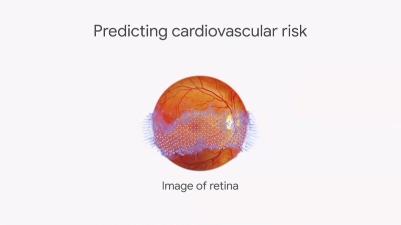 Google AI Levels Up Retinal Scans
