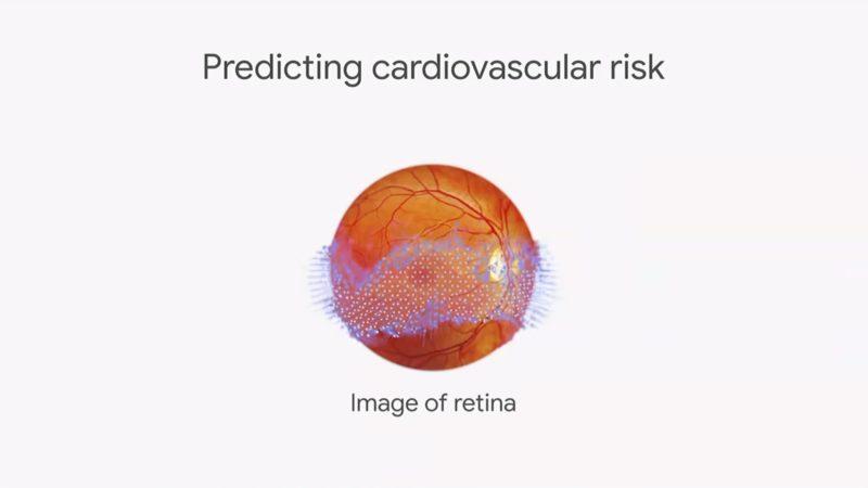 Google AI Levels Up Retinal Scans